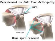 steroids after rotator cuff surgery
