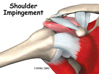 Impingement Syndrome London Hand Clinic